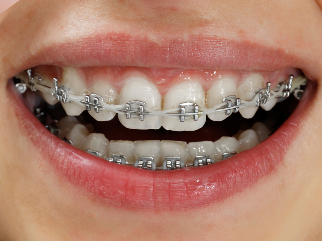 New Technology Braces